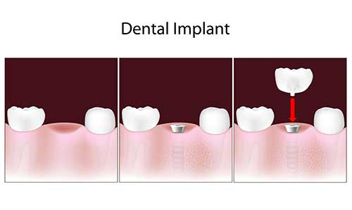 Implant Dentistry in Menlo Park