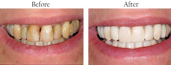 Menlo Park Before and After Teeth Whitening