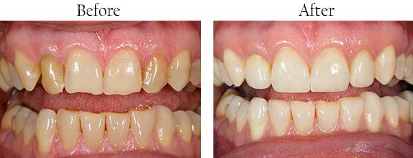 Atherton Before and After Smile Makeover